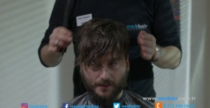 Saç Protezi