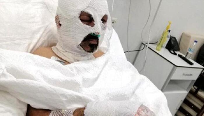 Zonguldak'ta dehşete düşüren olay! Tiner döküp yaktı